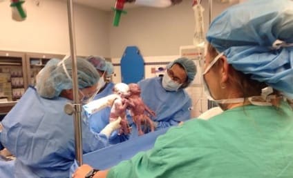 Mono Mono Twins Born in Ohio, Hold Hands Immediately After Birth