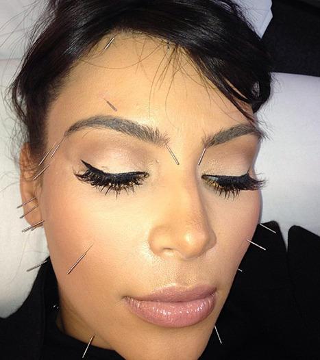Kim Kardashian Acupuncture Pic