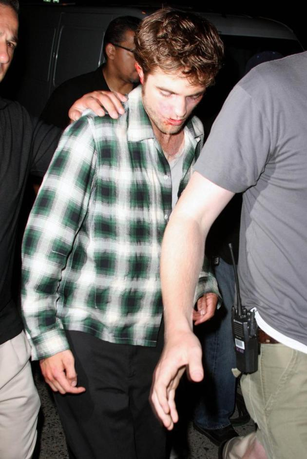Pattinson in Pain