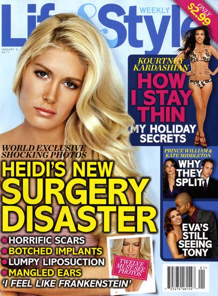 Heidi Montag Surgery Disaster