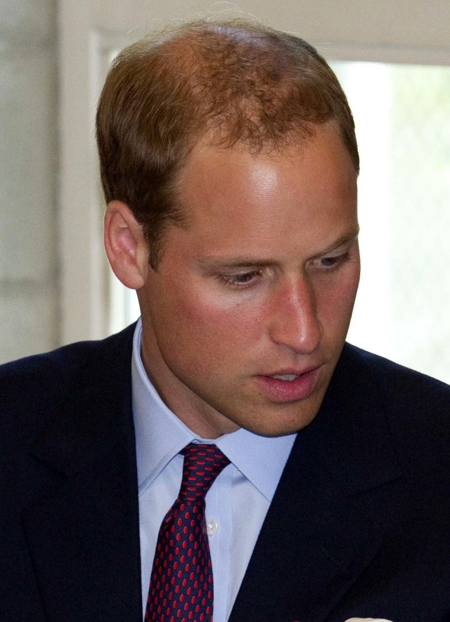 Prince William Hair