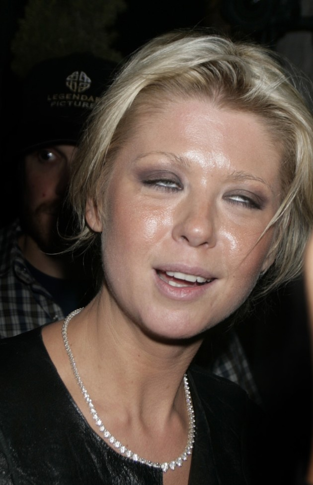 Tara Reid: Completely Butchered By Plastic Surgery ... But ...