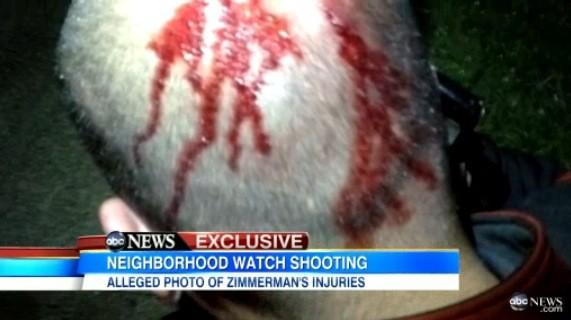 George Zimmerman Bloody Head Photo