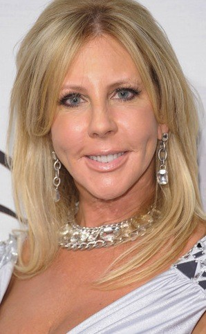 Vicki Gunvalson Before Plastic Surgery
