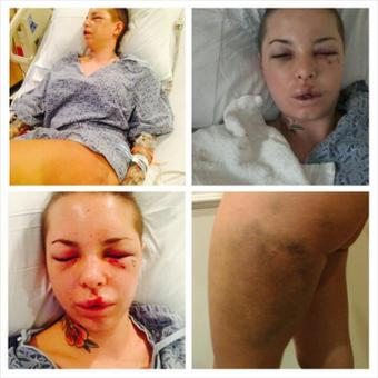 Christy Mack Beaten Photos