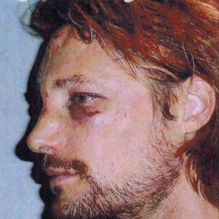 Gabriel Aubry Black Eye Pic