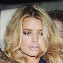 Jessica-simpson-lip-injections