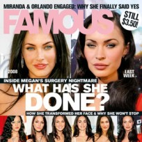 Has Megan Fox undergone plastic sugery?