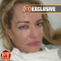 Should ET have released a photo of Taylor Armstrong with a black eye?