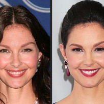 Ashley-judd-puffy-face-photo