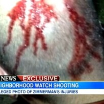George Zimmerman Bloody Head Photo