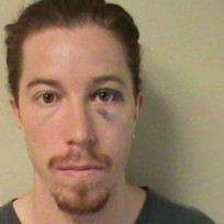 Shaun-white-mug-shot