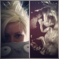 Holly madison sonogram