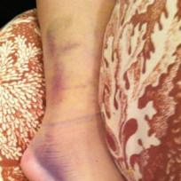 Demi Lovato Leg Pic