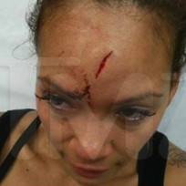 Evelyn-lozada-bloody-head