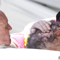 Pope-embraces-disfigured-man