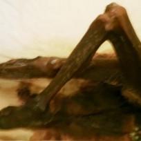 Decomposing corpse leg