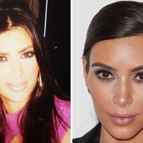 Kim-kardashian-plastic-surgery-photo