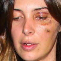 Brittny-gastineau-black-eye-picture
