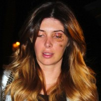 Brittny-gastineau-black-eye-photo