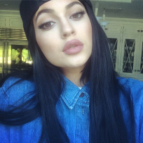 Kylie Jenner Lip Injection Photo