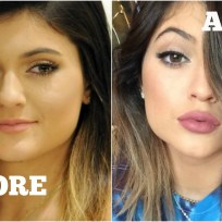 Before and after kylie jenner