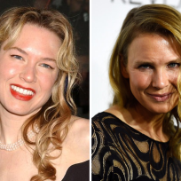 Renee zellweger then now