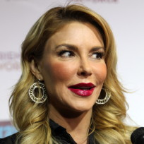 Brandi glanville botox gone wrong