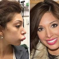 Farrahs lips be fixed