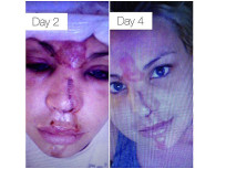 Lisa D'Amato, America's Next Top Model Winner, Destroys Face in Freak Accident