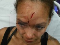Evelyn Lozada Bloody Head Photo Released; Chad Johnson Out of Jail