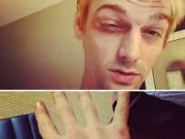 Aaron Carter: Beat Up By New Kids on the Block Fans!