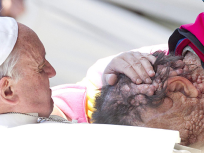 Pope Francis Embraces Disfigured Man, Iconic Photo Spreads Across Globe