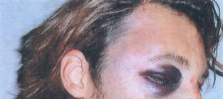 Gabriel aubry fight photo