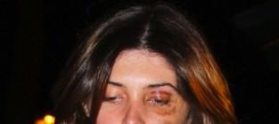 Brittny gastineau black eye photo
