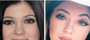 Kylie jenner injections