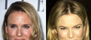 Renee Zellweger Plastic Surgery Photos? See Her Changing Face