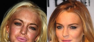 13 celebrities who became almost unrecognizable lindsay lohan