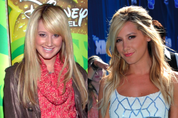Ashley Tisdale Nose Job Pics