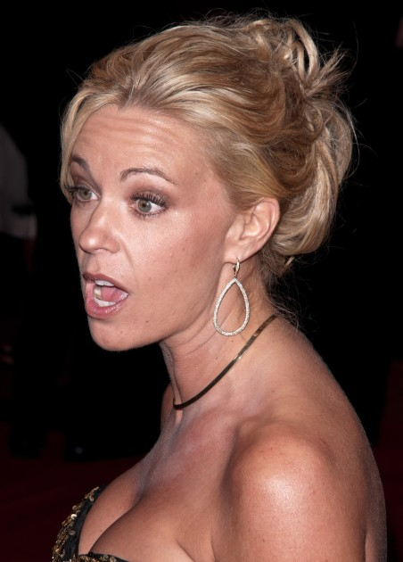 Kate Gosselin Facelift