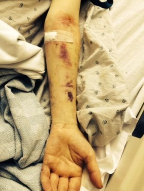 Deryck Whibley Arm