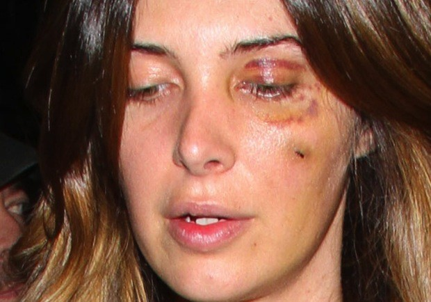 Brittny Gastineau Black Eye Picture