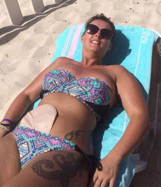 Tanning with Crohn's