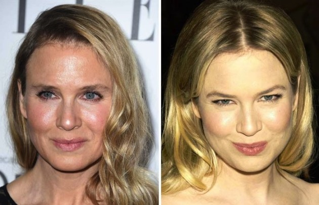 Renee Zellweger Then and Now