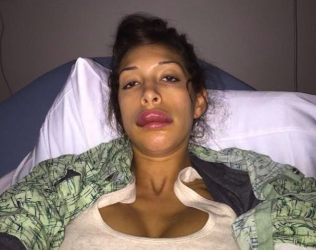 Farrah Abraham Lip Implant Photo