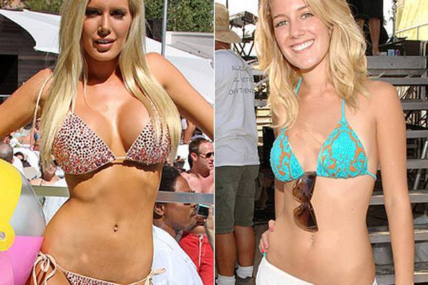 25 Heinous Celebrity Plastic Surgery Fails