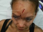 Evelyn Lozada Bloody Head