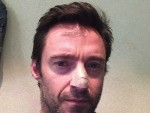 Hugh Jackman Skin Cancer Pic