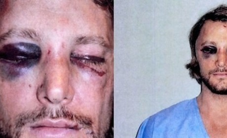 Gabriel Aubry Beaten Photos