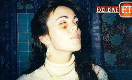 Dina Lohan Black Eye